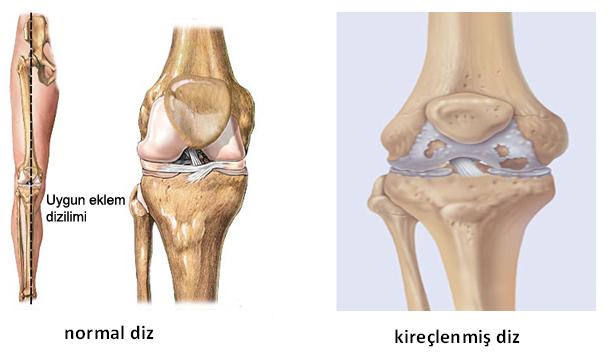 http://muratbozkurt.net/images/stories/diz/gonartroz1.jpg